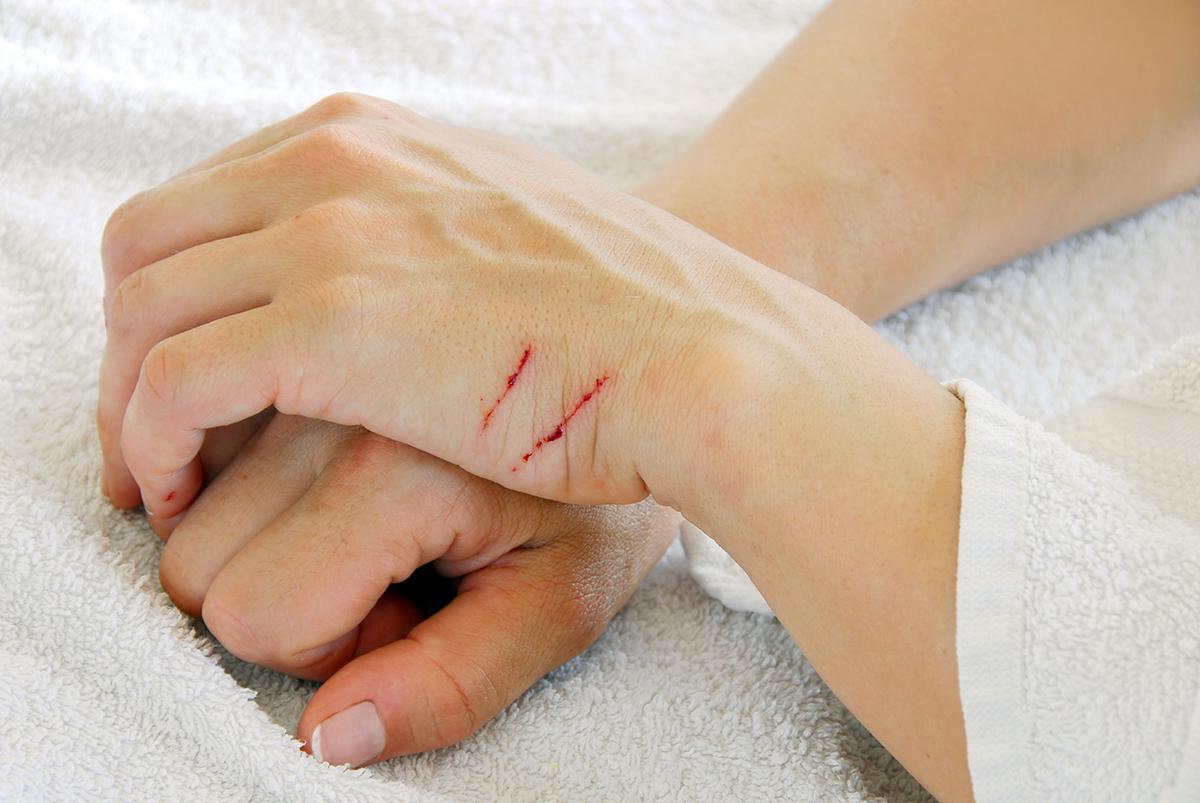 Раны на руках